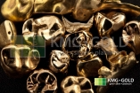 Dental Gold - KMG Gold - We Buy Gold. Sell Your Gold and Get Highest Price. Sell Silver, Sell Platinum, Sell Rhodium. Vancouver, Winnipeg, Edmonton, Toronto, Victoria, Canada. Gold Buyer. Get Cash For Gold 877-468-2220